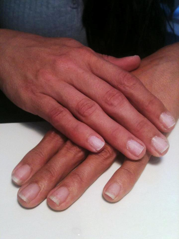 before-natural-nails